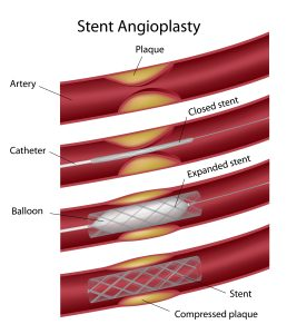 Makes stent visibile on x-ray